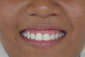 before - smile gallery - pink and white Dental Clinic
